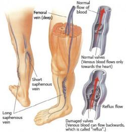 Formulazione delle vene varicose di diagnosi di vene